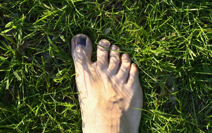 Black Toenail From Running: How to Treat Runners' Toe