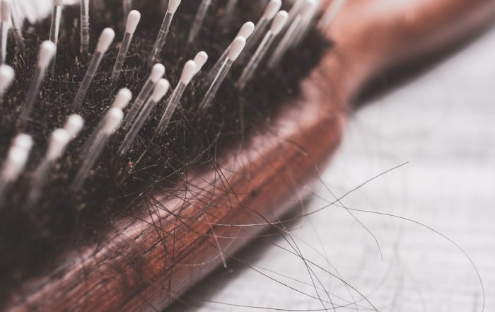 11 Causes of Hair Loss in Women
