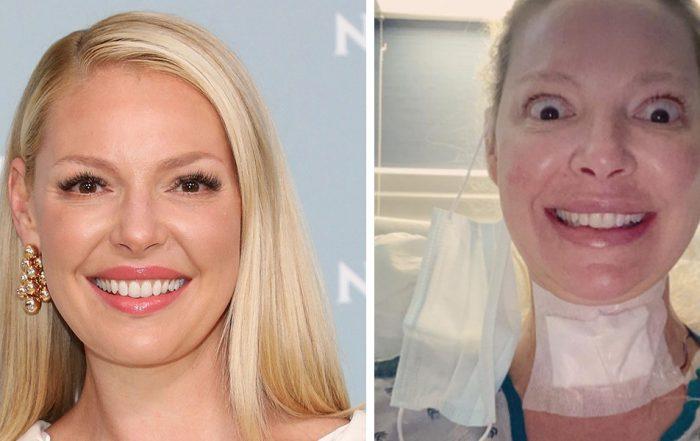 Katherine Heigl Revealed She Just Had Major Neck Surgery